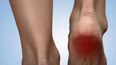 Photo of What to Know About Treating Heel Spurs